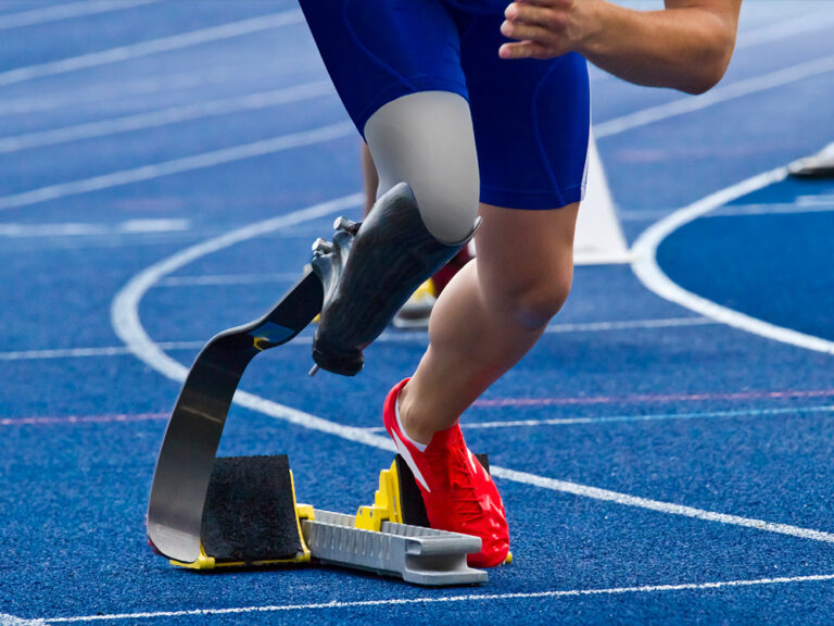 Thumbnail for Can disabled athletes outcompete able-bodied athletes?